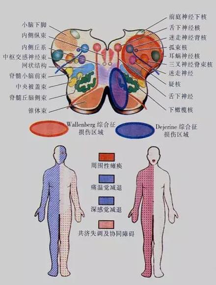 三叉神经脊束及脊束核:同侧面部