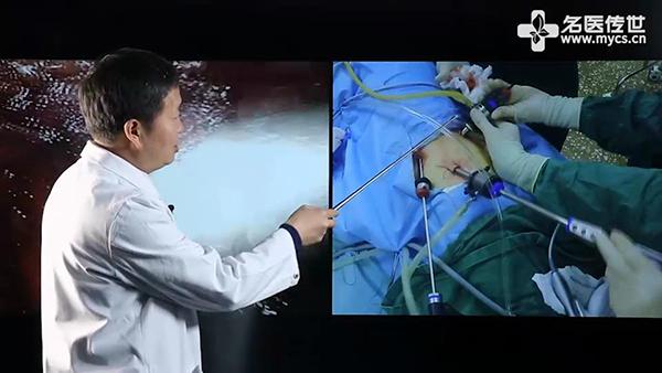 05手术过程(裁切过).jpg